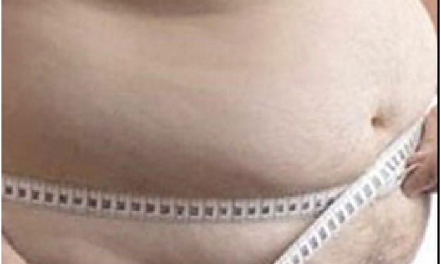 Alternativas para el tratamiento de la obesidad mórbida